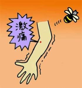 蜂にさされた画像